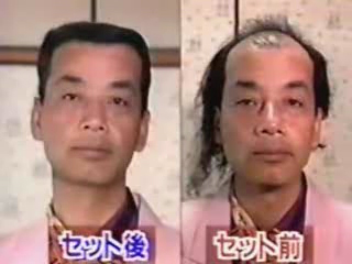 Image of a balding Japanese using comb-over technique to 'grow' hair.